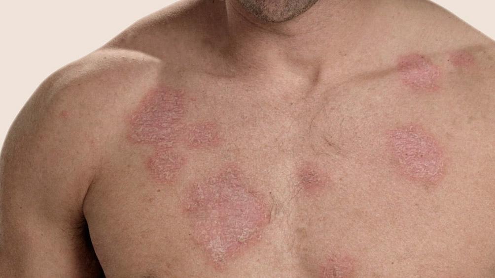 Impulsan proyecto de protección integral de las personas con lupus